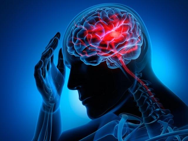 سکته مغزی درمان و فیزیوتراپی