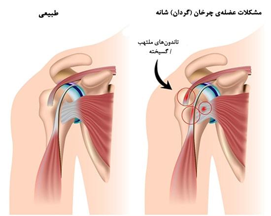 التهاب تاندون ، علائم و روش های درمان
