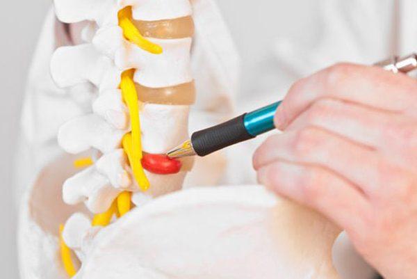 درمان دیسک کمر با فیزیوتراپی