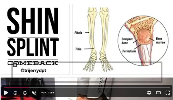 تمرینات فیزیوتراپی درد ساق پا