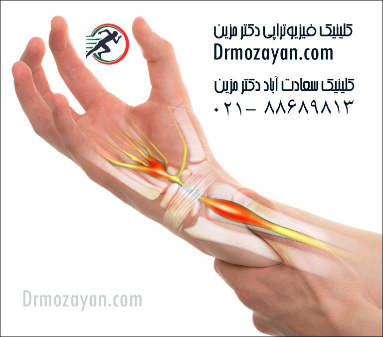 سندروم-تونل-کارپ،-کارپال-تونل-سندروم-،-فیزیوتراپی-مچ-دست-،-درمان-قطعی-مچ-دست-768x676